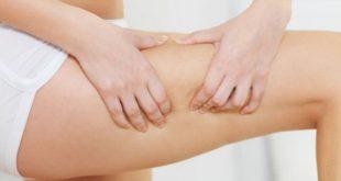rimedi naturali cellulite