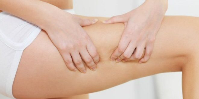 rimedi naturali cellulite