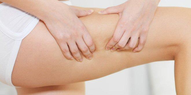 Eliminare Cellulite