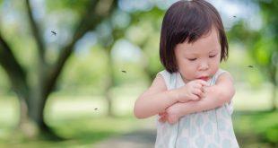 bambina con punture di zanzare